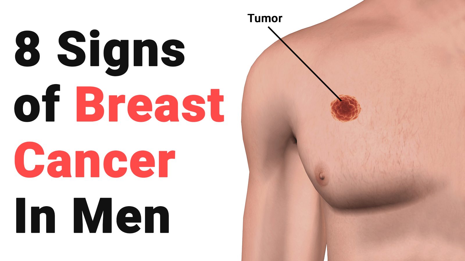 Causes of breast cancer in males