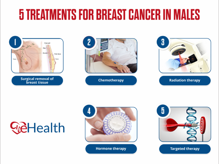 5+Treatment for Breast Cancer in Males 2021