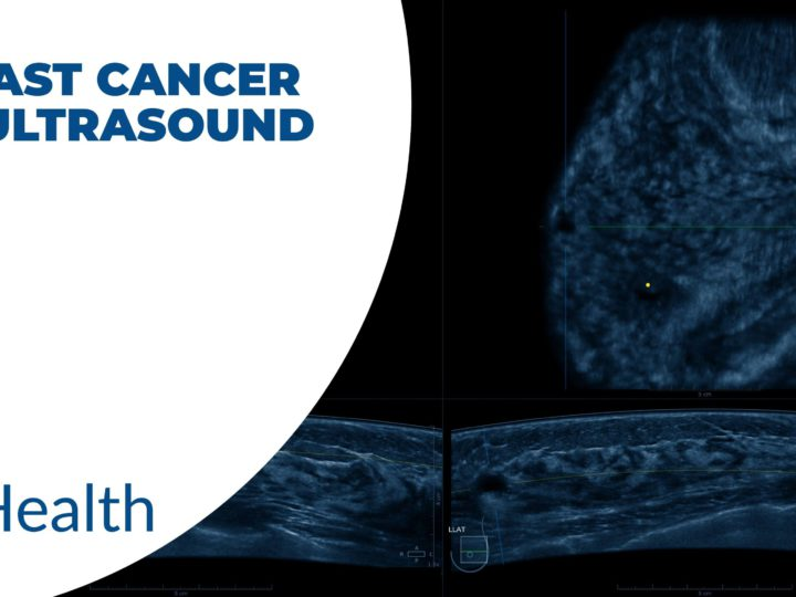 Breast cancer on ultrasound: Useful facts and benefits 2021