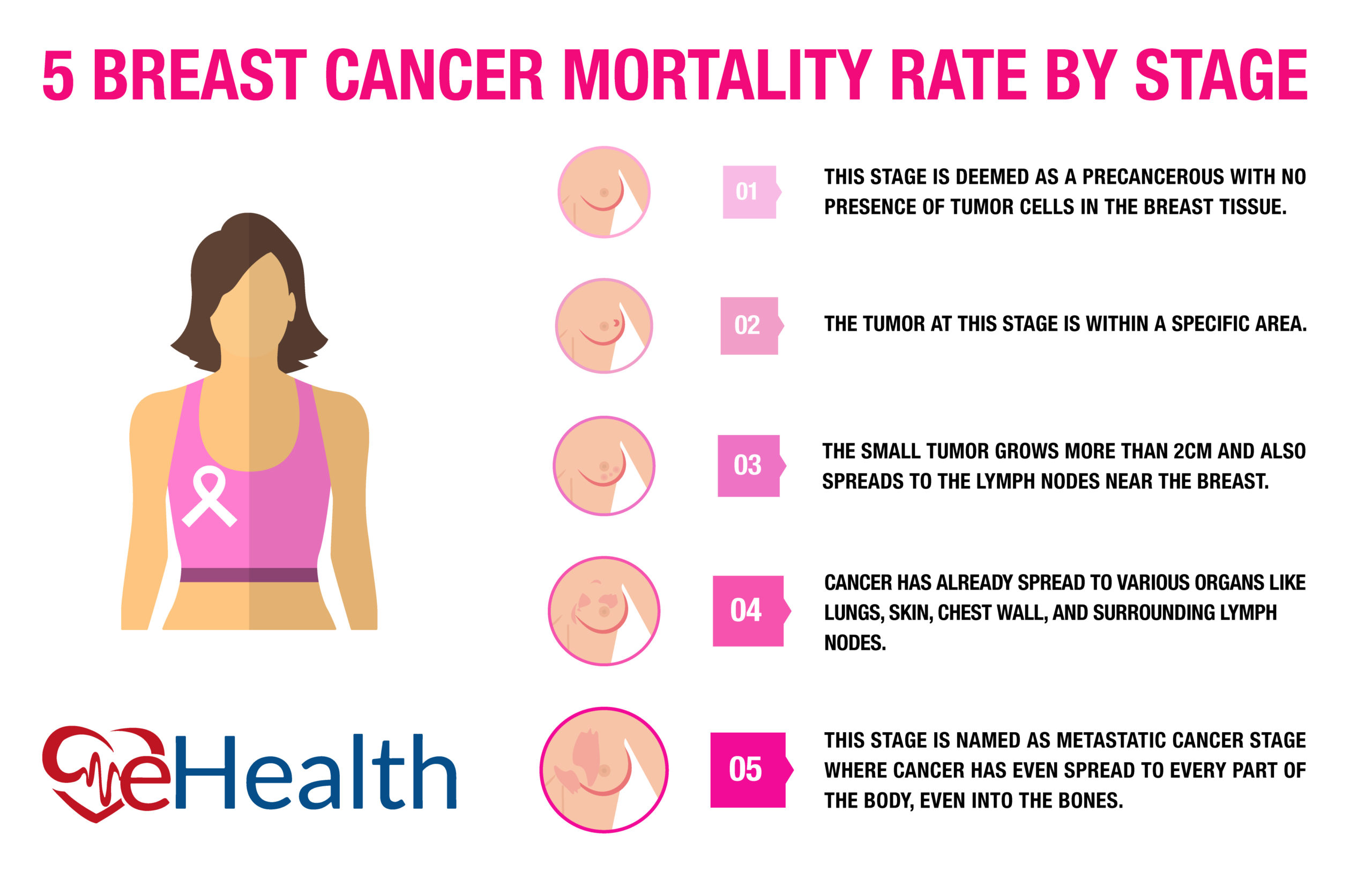 5+ Critical Stages of Breast Cancer Mortality Rates