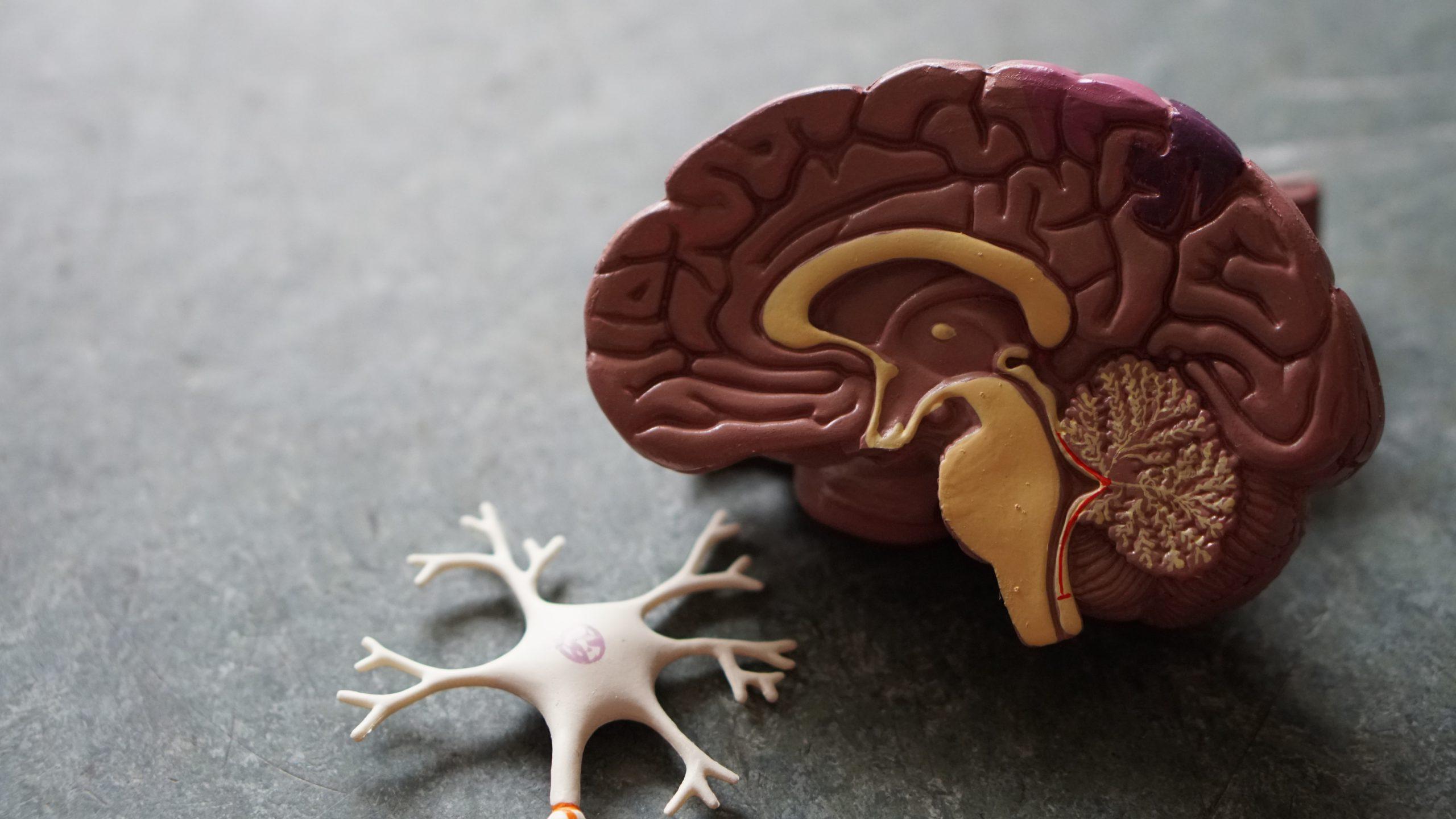 30+ alarming Alzheimer's symptoms